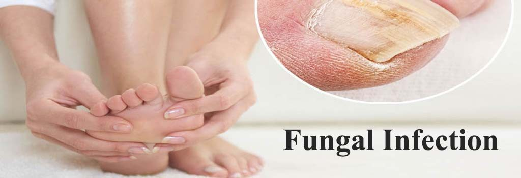 How To Naturally Treat Fungal Respiratory Infection